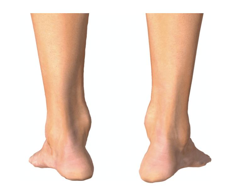 Massimo drommi piede cavo 2