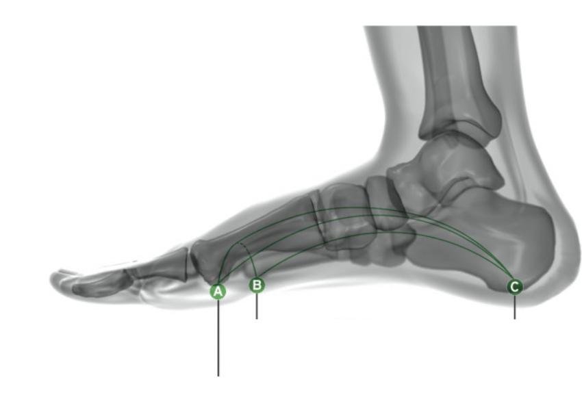 Massimo drommi piede cavo 4
