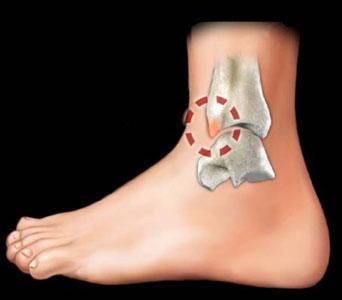 Massimo drommi_ortopedico_lesioni da impingment della caviglia