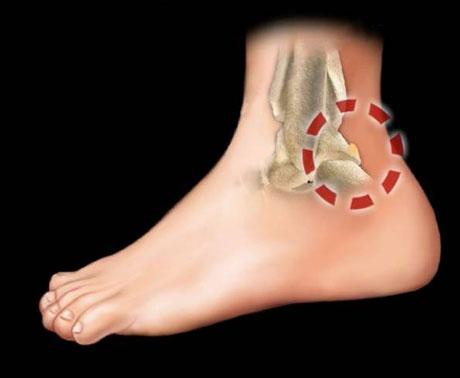 vMassimo drommi_ortopedico_lesioni da impingment della caviglia