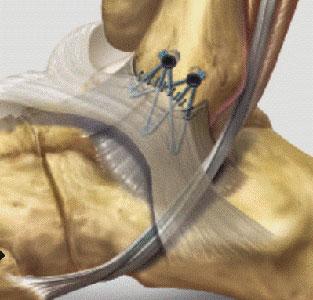 Massimi Drommi_lesione legamenti della caviglia