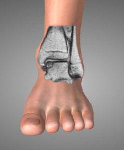 Lesioni osteo cartillaginee della caviglia