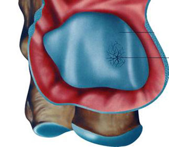 Chirurgo del piede Lesioni osteo cartillaginee della caviglia