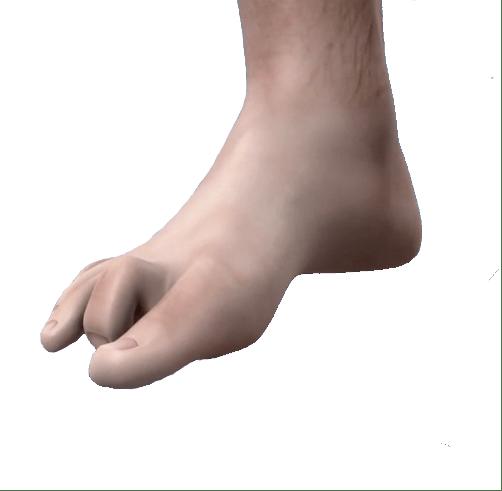 Che forma ha il tuo dito a martello 2